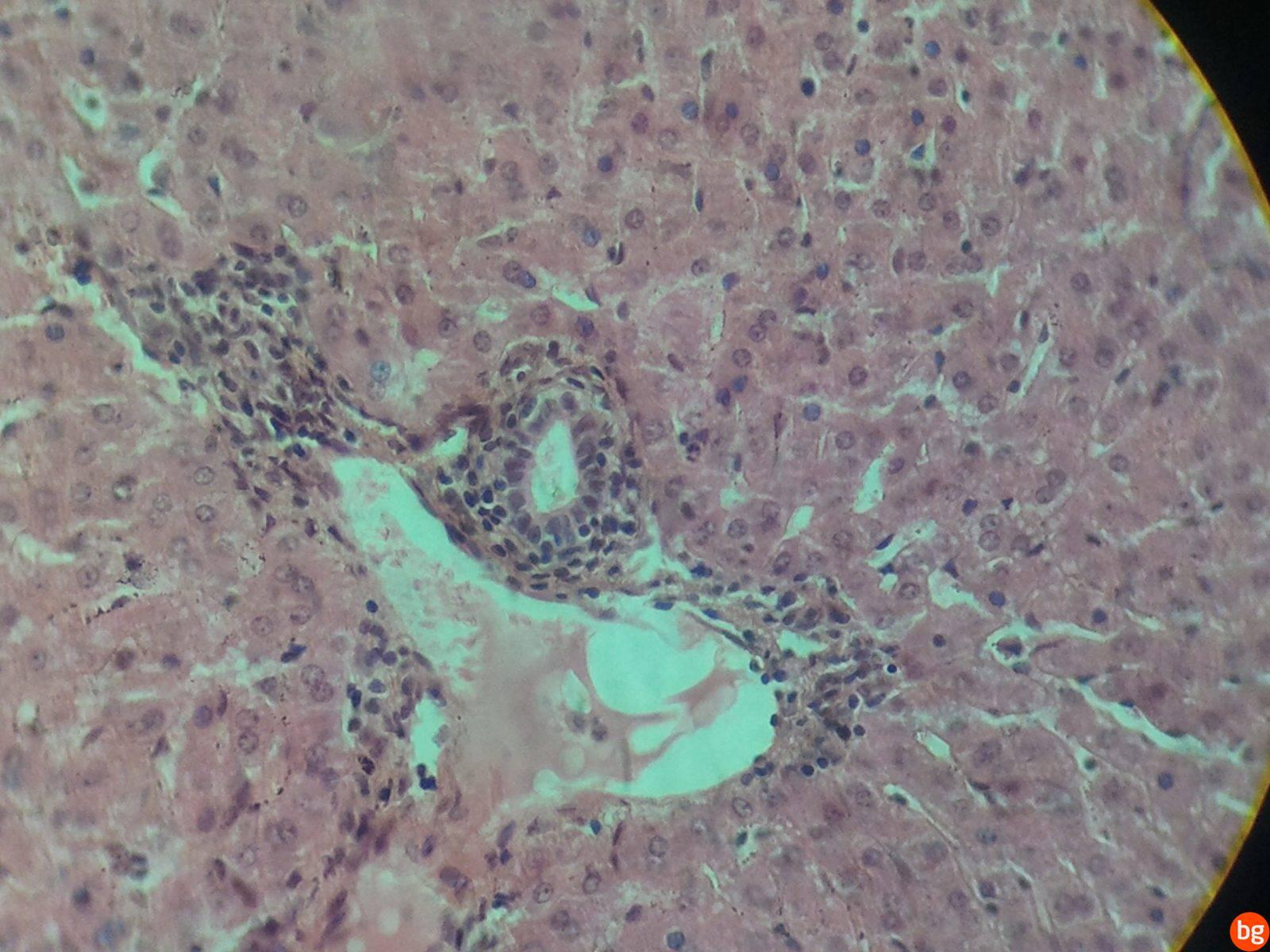 Karaciğer – Zarı kalın olan kan damarı + zarı ince olan toplama kanalı