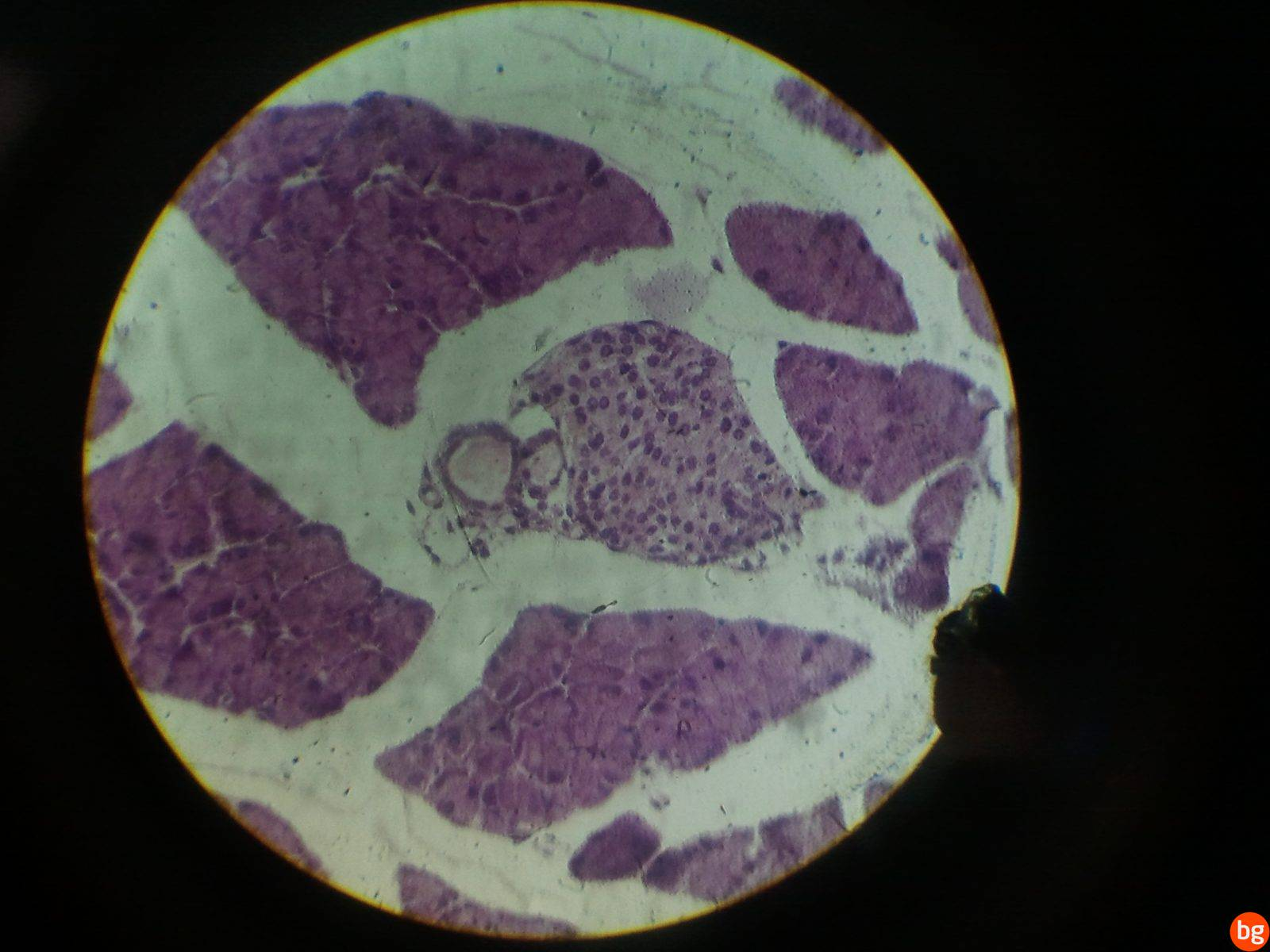 Pankreas(karma bez) – ekzokrin, endokrin kısımlar
