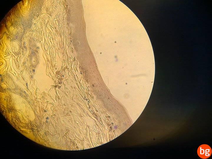 Çok katlı yassı örtü epiteli Fare derisi